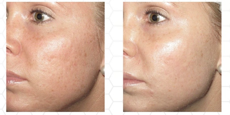 before and after images of a woman that underwent a collagen pin medical microneedling treatment